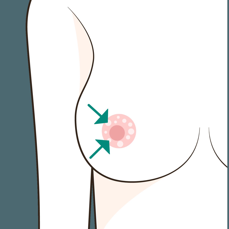 ちくび の 周り の ぶつぶつ